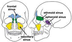 Startradiology Skull Anatomy, Brain Anatomy, Happy Birthday Mom Poems, Paranasal Sinuses, Maxillary Sinus, Internal Carotid Artery, Sinus Surgery, Nasal Septum, Nasal Cavity