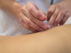 715 Best Acupuncture India images in 2019 | Acupuncture