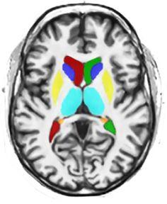 recuperacion cerebro