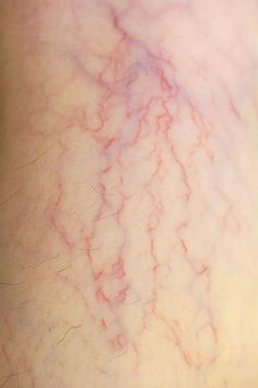 Varicose Veins, Photo Reference, Healthy Tips, Human Body, Hair Beauty, Rembrandt, Advice, Google Search, Tattoos