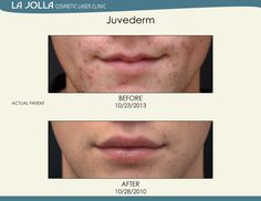 Patient treated with Juvederm at La Jolla Cosmetic Laser Clinic.
