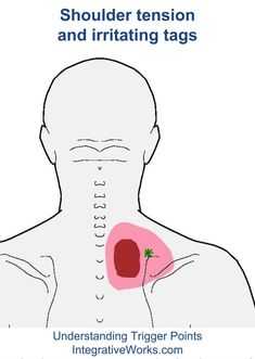 Understanding Trigger Points - Tension and burning in shoulders, irritating tags