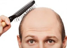 Male Patterned baldness: How to Prevent Male Patterned Hair Loss Further