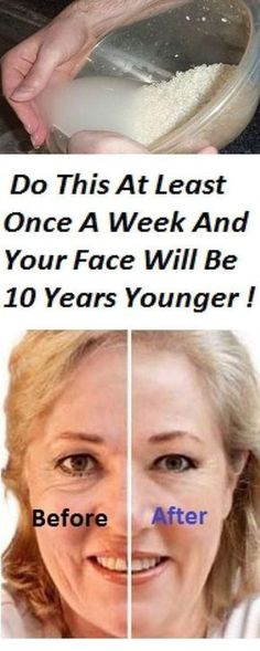Are you fed up with the fine lines and wrinkles on your face which make you look older? The aging process often makes the facial skin dull. Sometimes due to dark spots and uneven skin, your face st… Skin Tips, Skin Care Tips, Beauty Secrets, Beauty Hacks, Diy Beauty, Younger Skin, Too Faced, Tips Belleza, Skin Care