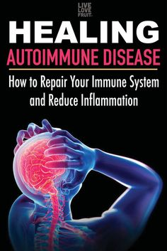 Hypothyroidism Diet - Healing Autoimmune Disease: How To Repair Your Immune System and Reduce Inflammation - The Healthy Thyrotropin levels and risk of fatal coronary heart disease: the HUNT study. Arthritis Remedies, Rheumatoid Arthritis, Health Remedies, Arthritis Hands, Arthritis Exercises, Herbal Remedies, Natural Cure For Arthritis, Natural Cures, Natural Remedies