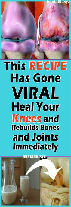 This Recipe Has Gone Viral! Heal your Knees and Rebuilds Bones and Joints Immediately – AlljustEasy
