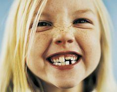 How To Keep Your Kids Teeth Clean - www.GrowingUpHerbal.com