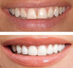 Entistä valkoisemmat hampaat kotivalkaisulla