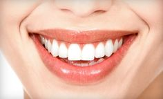 for $2,799, you get an Invisalign treatment package with teeth-whitening services (a $7,300 value) at Stanford Dental & Orthodontics, valid at locations in Rocklin and Folsom. The package includes:    An initial examination  Set-up fee  Initial photos  ClinCheck computerized treatment plan  Impressions  Aligners  Periodic visits during treatment  Complimentary take-home teeth-whitening system