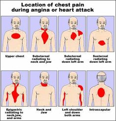Location of chest pain