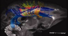 The brain is wired in a 3D grid structure, landmark study finds