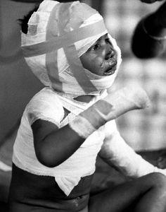 Young victim of Dak Son Massacre. 600 Viet Cong troops killed 252 civilians in a vengeance attack at Dak Son, home to Montagnards, who opposed the Viet Cong. Nagasaki, Hiroshima, Fukushima, North Vietnam, Vietnam War, World History, World War, Korea, Orphan