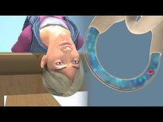 Video showing deep head hanging maneuver to treat superior canal BPPV. Causes Of Sleep Apnea, Sleep Apnea Remedies, Headache Remedies, Headache Relief, Pain Relief, Acupuncture Points, Acupressure Points, Inner Ear Balance, Epley Maneuver