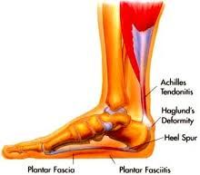 Treatment of Plantar Fasciitis is easier than you think. Natural anti-inflammatory products can help treat plantar fasciitis, heel spurs, Achille's injuries and shin splints. Visit our website and order a free sample today. Heel Pain, Foot Pain, Haglunds Deformity, Walking On Broken Glass, Plantar Fasciitis Treatment, Shin Splints, Achilles, Natural Treatments, Feel Like