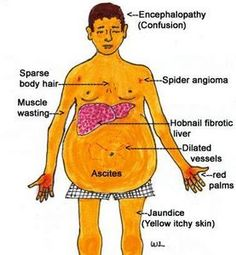 Effects of Cirrhosis of the Liver