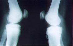 X-rays have been traditionally used and show a clear separation of fragments of the tibial tubercle   http://www.osgood-schlatters-disease.co.uk/