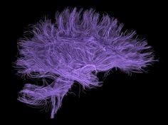 Violet brain