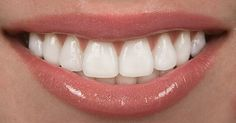 Mitos y verdades de la ortodoncia