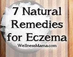 Seven Natural Remedies for Eczema 7 Natural Remedies for Eczema