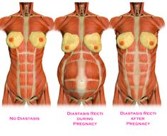 The Who and Why Behind Diastasis Recti