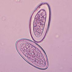 Enterobius eggs (50 um)