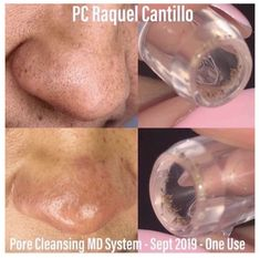 Unclog Your Pores with Pore Cleansing MD System Blackhead Extraction, Oily T Zone, Rodan And Fields Consultant, Clean Pores, Minimize Pores, Pore Cleansing, Clogged Pores, Skin Care Tools, Blackhead Remover