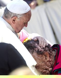Pope Francis Kisses Severely Disfigured Man And Prays With Him. He may not be as liberal as I would like but this man WINS AT LIFE!