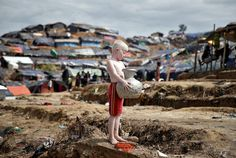 An albino Rohingya refugee poses for a picture in Cox's Bazar, Bangladesh, September 27, 2017. (REUTERS/Cathal McNaughton)  via @AOL_Lifestyle Read more: https://www.aol.com/article/news/2017/09/29/photos-of-the-week-922-929/23227850/?a_dgi=aolshare_pinterest#fullscreen