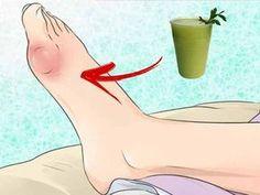 Băutura pe care ţi-o vom prezenta în continuare ajută la eliminarea acidului uric acumulat în articulaţii şi ţesuturile cartilaginoase. Remediul lichid este foarte bun pentru detoxifiere şi reduce eficient inflamaţia.   Mod de preparare  Ca să prepari băutura, ai nevoie doar de un castravete (de mărime medie), o bucată de rădăcină de … Arthritis Remedies, Aurora Sleeping Beauty, Health, Outdoor Decor, Fanart, Games, Medicine, Home, Health Remedies