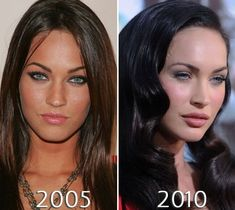 Megan Fox lips before and after photo Megan Fox Plastic Surgery, Plastic Surgery Before After, Celebrity Plastic Surgery, Megan Fox Before After, Before After Photo, Megan Fox Lips, Lip Injections, Take That, Hair Beauty