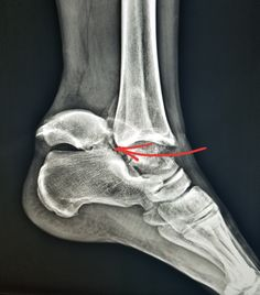 severe fracture dislocation of the talus after car accident. This information is for educational purposes. There is no individually identifiable health information. De-identification of protected health information has been performed. Ankle Fracture, Protected Health Information, Anatomy Images, Ankle Joint, Lab Tech, Podiatry, Medical Field, Ultrasound, Physical Therapy