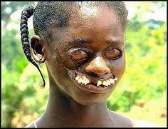 Amigos da Universal: Noma: Doença que está apavorando a África imagens ...
