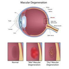 5 Best Vitamins For Macular Degeneration Prevention