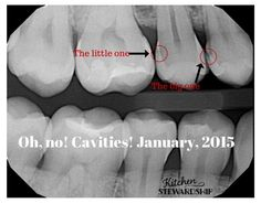 Cavities after 3 months anti-cavity diet to heal tooth decay What Is Tooth Decay, Cure Tooth Decay, Home Remedy Teeth Whitening, Teeth Whitening System, Tooth Decay Treatment, Remedies For Tooth Ache, Dental Implants, Dental Hygienist, Dental Care