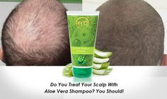 Why is Aloe Vera for Hair Growth so Effective? Natural Aloe Vera, Natural Oils, Aloe Vera Shampoo, Reduce Hair Fall, Anti Dandruff Shampoo, Aloe Vera For Hair, Smooth Hair, Fall Hair, Hair Growth