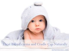 How to Treat Baby Eczema and Cradle Cap Naturally