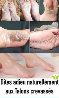 Foot Peeling Mask - Care - Skin care , beauty ideas and skin care tips Natural Hair Mask, Natural Hair Styles, Natural Beauty, Brown Spots On Skin, Dark Spots, Foot Peel, Skin Tag, Tips Belleza, Feet Care