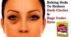 Get rid of under eye bags. Remedies for under eye bags treatment. Prevent under eye bags naturally. Cure under eye bags. Avoid under eye bags fast. Baking Soda Bath, Baking Soda And Lemon, Baking Soda Shampoo, Baking Soda Uses, Reduce Dark Circles, Dark Circles Under Eyes, Makeup Tricks, Makeup Videos, Under Eye Bags