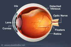 Vitreous Detachment Posterior Vitreous Detachment, Health And Nutrition, Health Fitness, Eye Anatomy, Factors, Fitness Tips, Clinic, Cases, Medical