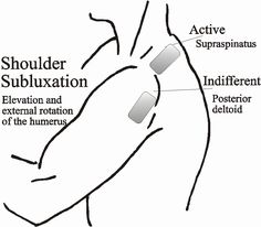 Info on e-stim placement for subluxation, general UE after stroke.