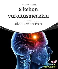 8 kehon varoitusmerkkiä aivohalvauksesta  Aivohalvauksen nopea #havaitseminen on vaikeaa, ja ilmiö sekoitetaankin usein #tavallisempiin #terveysongelmiin.  #Mielenkiintoistatietoa
