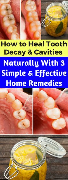 How to Heal Tooth Decay & Cavities Naturally With 3 Simple and Effective Home Remedies - seeking habit