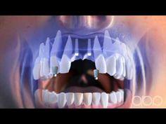 Dental implant - 3d Medical Animation