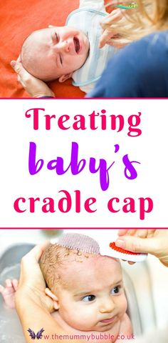 How to treat baby's cradle cap - The Mummy Bubble Struggling to get rid of stubborn cradle cap on your newborn baby's scalp? Treating baby cradle cap can be so tough. Here are my tips for coping with baby cradle cap and getting rid of those nasty yellow flakes for good<br> Cradle cap in babies is nothing to panic about, but it isn't pleasant and as parents we just want it to go away. It drove me crazy trying to get... Baby Cradle Cap, Parenting Teens, Parenting Advice, Newborn Care, Newborn Babies, Baby Hacks, Baby Tips, Babies First Year, Small Baby