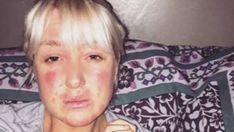 Caitlin Stewarts, eine junge Amerikanerin, ist große Tierliebhaberin. Leider muss sie mit einer Allergie gegen alle Tiere, mit Ausnahme von Hühnern, kämpfen. Aber das hindert sie nicht daran, ihnen zu helfen und so hat sie bereits Hunderte gerettet.