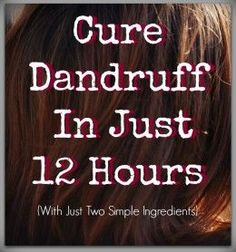 Cure Dandruff In Just Two Hours (With Two Simple and Natural Ingredients)