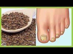 (58) Ningún hongo sobrevive ante este potente germicida - YouTube