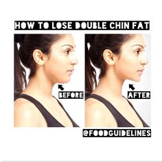 how to lose my chin fat