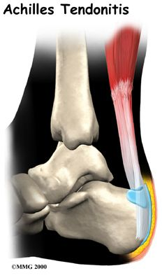 PHYSIO ANSWERS: What is Tendinitis? Pinned by SOS Inc. Resources @SOS Inc. Resources http://pinterest.com/sostherapy.