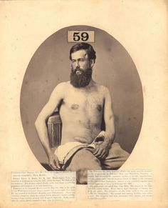 These photographs of injured American Civil War soldiers were created by Reed B. Bontecou, a New York surgeon who played a key role in docum...